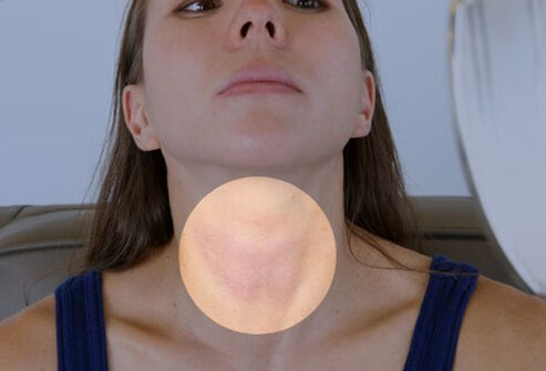 A woman does a thyroid neck check in the mirror.