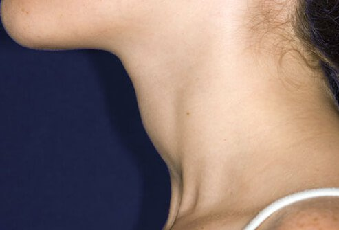 A woman's profile showing a swollen thyroid.