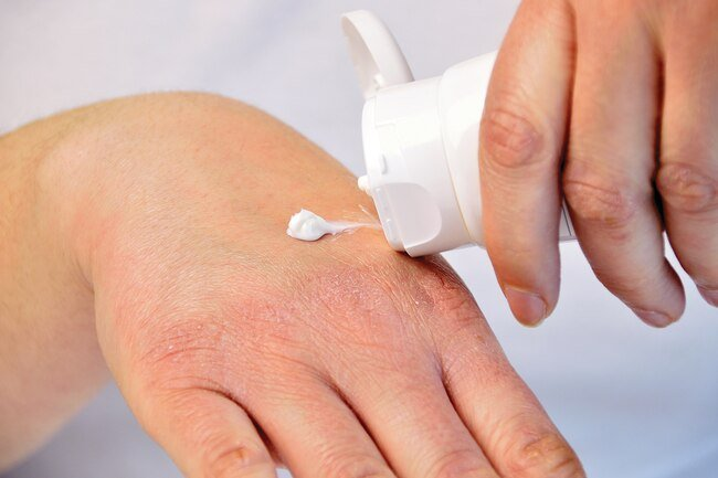 Dry skin is more common as we age.