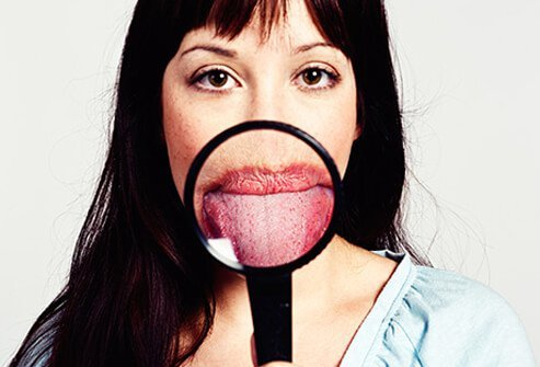 You taste buds are too small to see on your tongue.