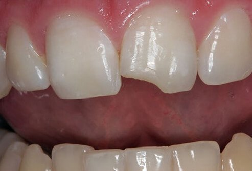 Photo of chipped tooth.