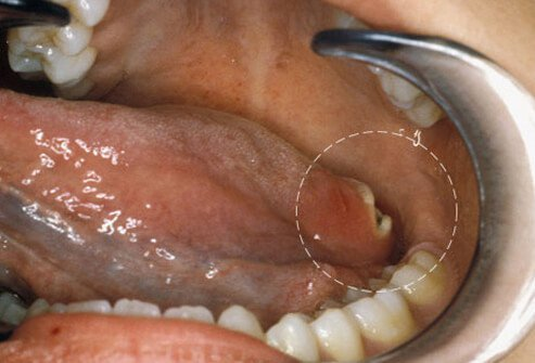 Photo of tongue cancer.