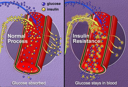 Normal insulin absorption vs. insulin resistance.