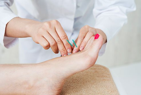 Acupuncture may be an effective treatment for warts.