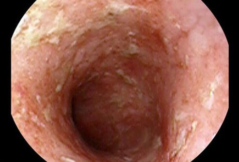 The main symptoms caused by ulcerative colitis are abdominal pain and diarrhea, usually bloody.