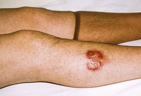 Necrobiosis lipoidica causes skin ulcers, usually on the shins.