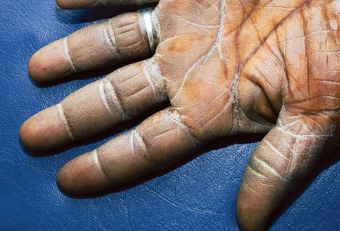 Buildup of keratin on the skin is a hallmark feature of ichthyosis vulgaris.