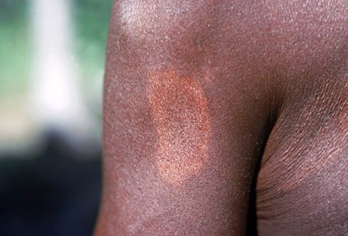 Leprosy causes reddish spots and swollen skin.