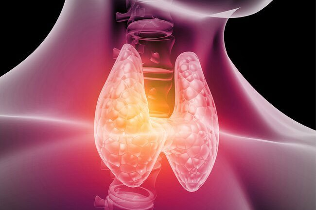 Thyroid-stimulating hormone test shows if your thyroid gland is enlarged or has bumps.