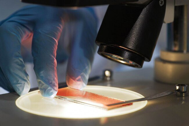 Platelet cells help heal wounds and stop bleeding.