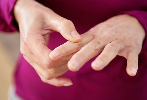 Pain in woman's hands caused by rheumatoid arthritis or lupus.