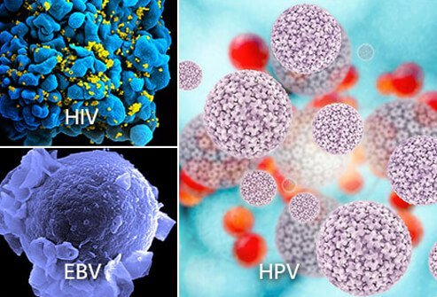 Viruses that can cause cancer include Epstein-Barr virus (EBV), human papilloma virus (HPV), and human immunodeficiency virus (HIV).