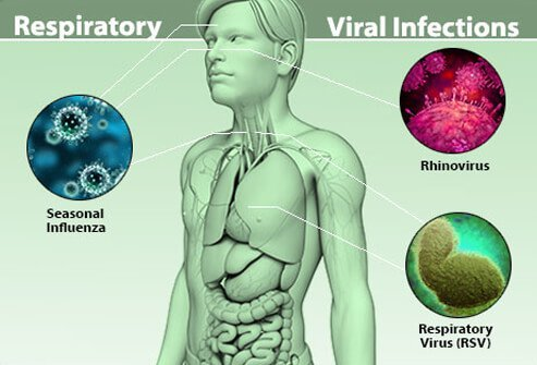 Illustration of viral infections such as rhinovirus (nose), influenza (throat) and respiratory virus (lungs).