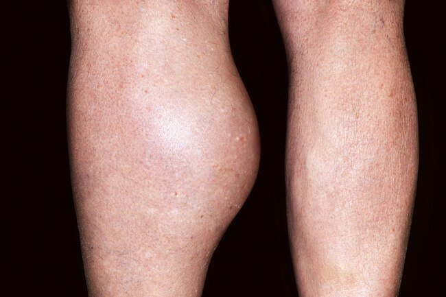 A baker's cyst may form behind the knee due to injury or arthritis.