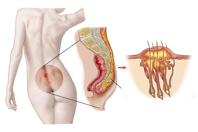 A pilonidal cyst forms at the base of the spine in the crease where the buttocks start.