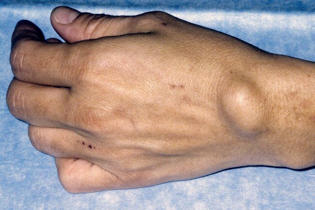 Ganglion cysts are filled with fluid near joints or tendons on the wrist or fingers.