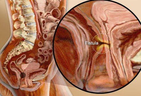 Fistulas and abscesses usually are treated surgically.