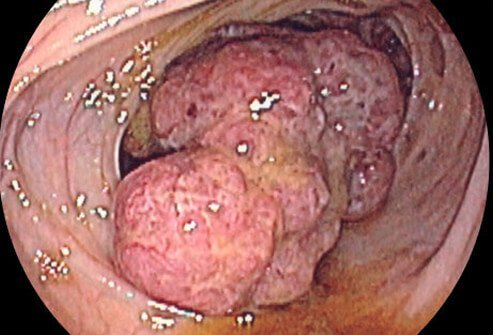 Cancer of the bowel is a later complication of IBD.