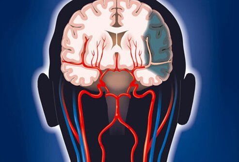 Illustration showing brain damage from stroke.