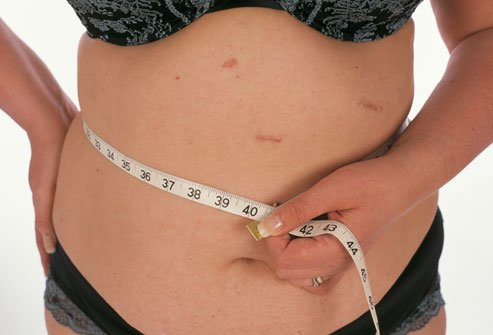 Weight loss results vary by surgery, but may be as much as one pound per day.
