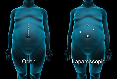 Your surgeon must choose between open surgery and laparoscopic surgery.