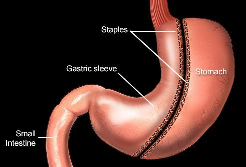 Most of your feelings of hunger are removed, along with most of your stomach, during a gastric sleeve surgery.
