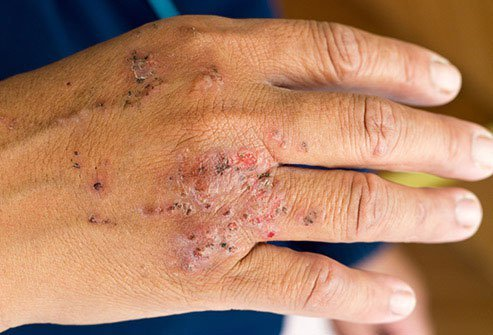 Contact dermatitis happens when your skin comes into contact with something allergic or irritating.