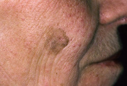 Seborrheic keratosis also occurs with aging skin.