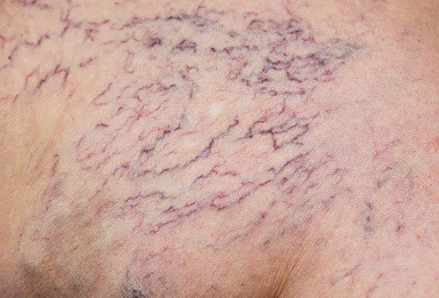 Spider veins are like varicose veins but they are smaller.