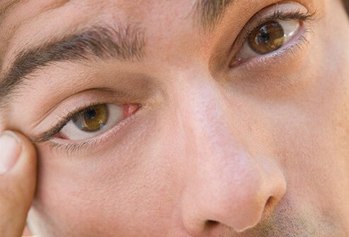 Eyelid spasms are unpredictable, bothersome, and harmless.