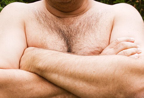 Gynecomastia is usually caused by normal changes in hormone levels at birth, puberty, and later in life.