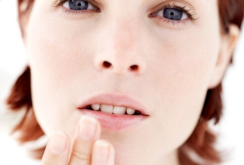 Canker sores are small ulcers inside the mouth.