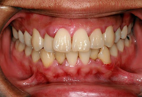 Gum disease is one of the more common causes of bad breath.