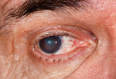 People who have brown eyes are more likely to get cataracts than those who have blue eyes.