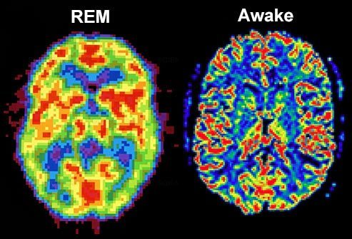 When you close your eyes and start to drift into non-REM sleep, your brain cells settle down from their daytime activity levels and start firing in a steady, more rhythmic pattern.