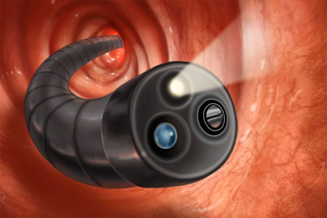 A doctor performs a colonoscopy to visualize the inside of your colon.