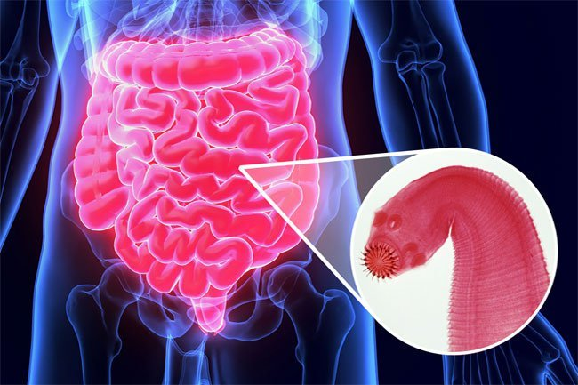 Tapeworms are gut parasites that can invade the digestive tract of humans.