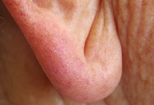 A crease in your earlobe may be a sign of heart disease.