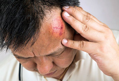 A bump on the head can be serious and need immediate medical care.