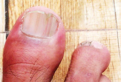 When toenails have red and white stripes, there are usually problems elsewhere on your body.