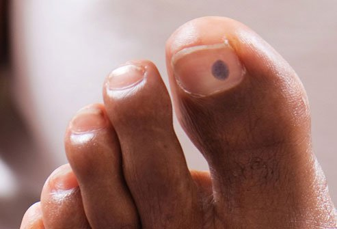If you stub your toe and it turns blue, you might not think twice about the color.