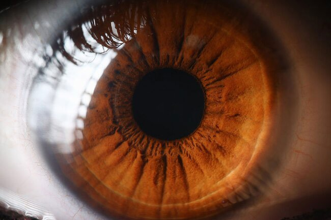 About 250 million people around the world have mild to serious vision loss.