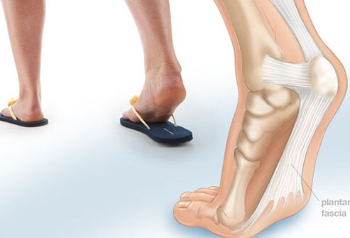 Photo of plantar fasciitis.