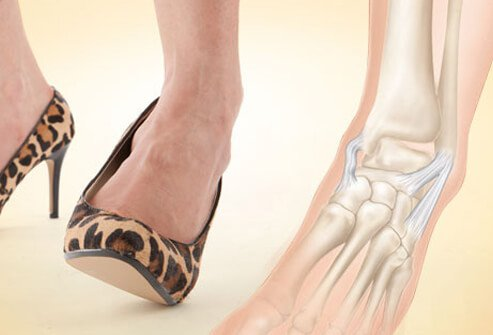 Photo of ankle sprain risk.
