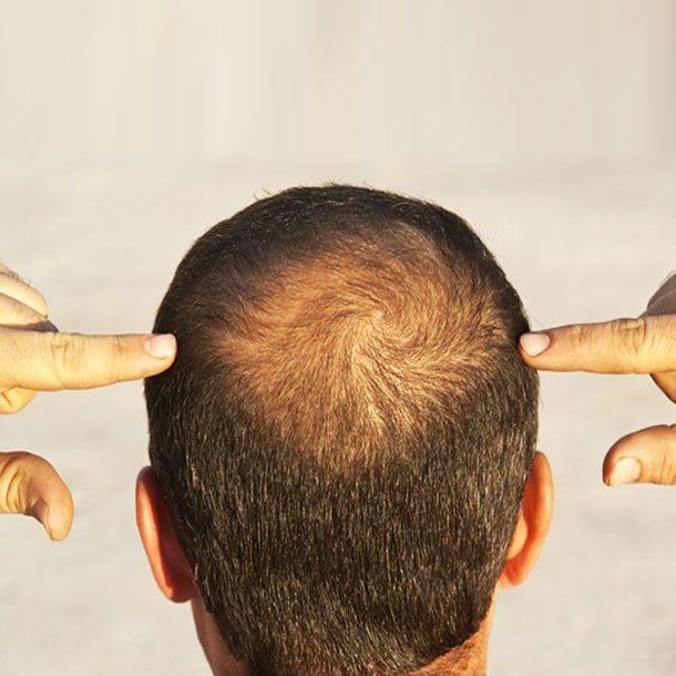 Hair Loss: Conditions That Can Cause Body Hair Loss
