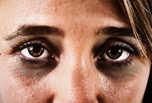 Dark circles under your eyes may have a wide variety of causes and treatments.