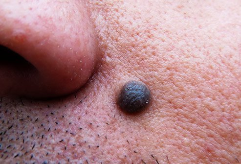 Strange looking moles may indicate skin cancer.