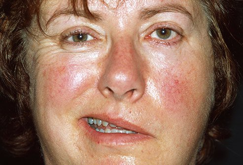 Bell's palsy can be responsible for facial paralysis.