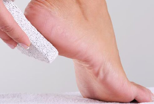 Calluses and corns are hardened skin that can crack and hurt if they get too thick.